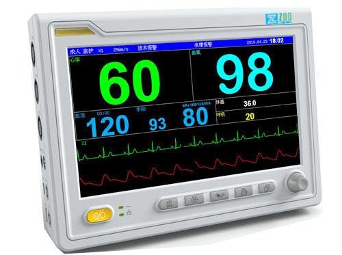 Монітор пацієнта та його властивості