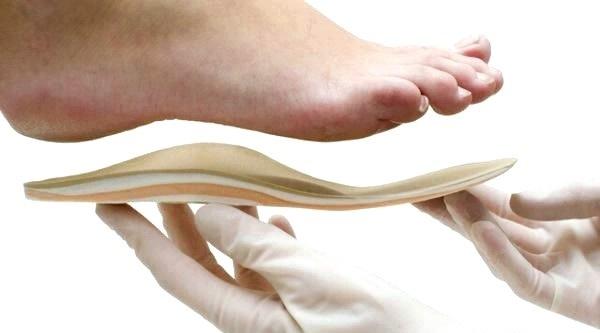 Вибір ортопедичних устілок