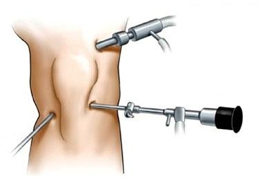 Що таке артроскопія колінного суглоба