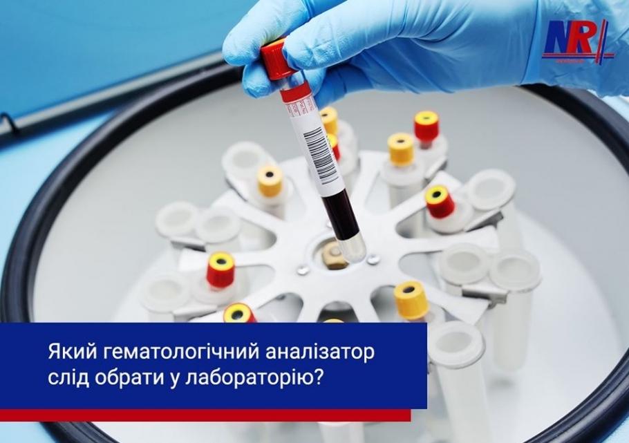 Який гематологічний аналізатор слід вибрати в лабораторію?