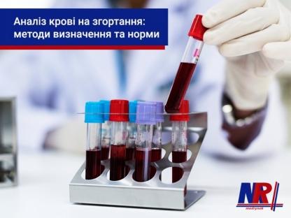 Аналіз крові на згортання: методи визначення та норми