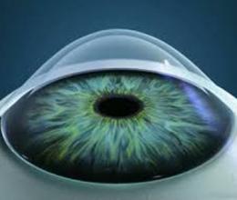 Лікування кератоконуса в Центрі корекції зору