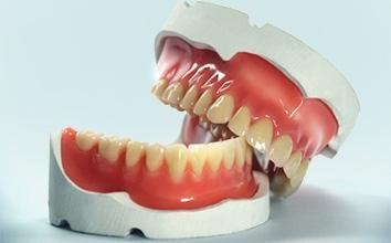 Протезирование зубов - бюгельный, нейлоновый протез
