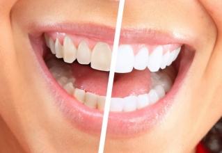 Бережное отбеливание зубов в клинике