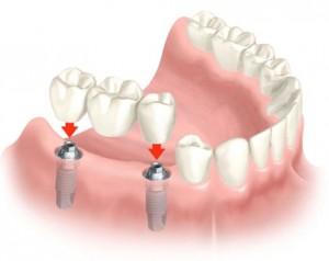 Зубне протезування - вирішення проблеми порожніх місць в зубному ряду
