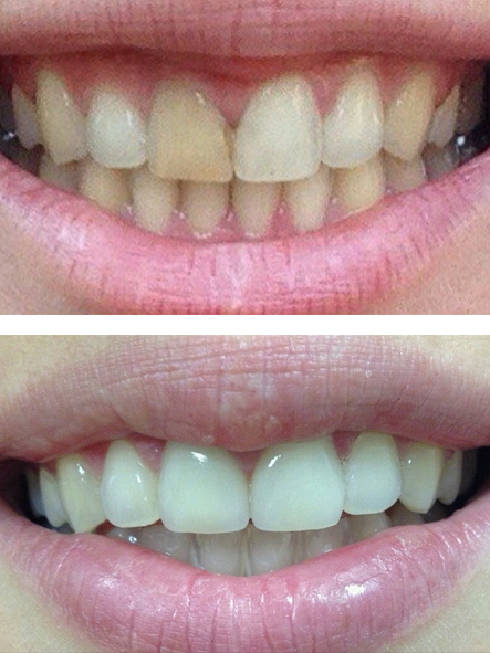 Вініри на зуби: швидко та якісно