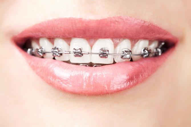 Поставити брекети для вирівнювання зубів