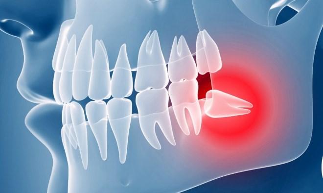 Видалення зуба мудрості безболісно у клініці