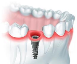Классическая имплантация зубов по доступной цене