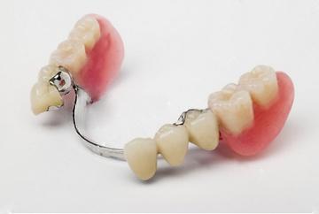 Бюгельне протезування зубів