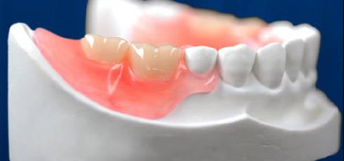 Вставити зубні протези недорого Київ