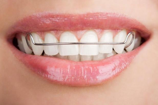 Детский ортодонт Киев - пластины для выравнивания зубов