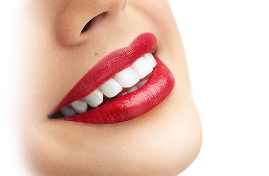 Отбеливание зубов цена наилучшая Киев
