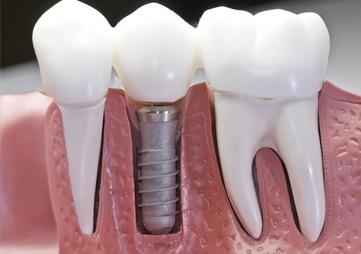 Замовити зубні імплантатиКиїв недорого
