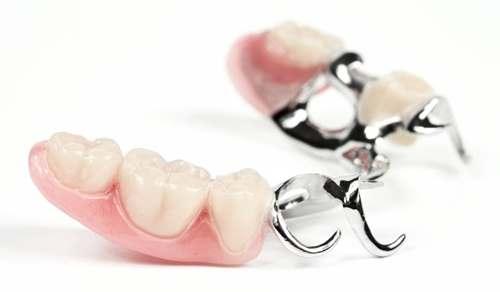 Бюгельний протез установка Київ: виправлення дефектів зубного ряду