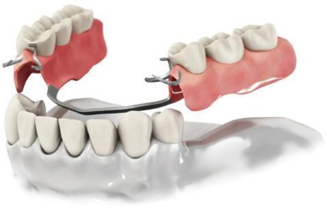 Вставити зубні протези Київ: швидко, якісно, надійно