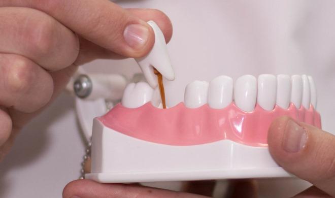 Протезирование зубов цены самые низкие в Киеве!