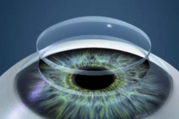 Преодолеем плохое зрение благодаря удобным контактным линзам!