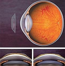 Пропонуємо нічні лінзи для корекції зору у дітей