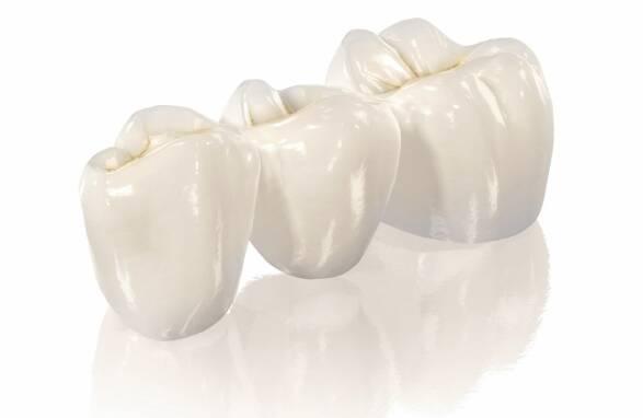 Зубна коронказа оптимальною ціною