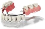 Вставить зубные протезыКиев: быстро, качественно, надежно