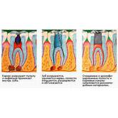 Ендодонтія - лікування кореневих каналів