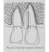 Проведение гингивотомии в Киеве