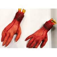 Обрубки рук
