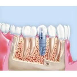 Одноэтапная экспресс-имплантация зубов в Киеве