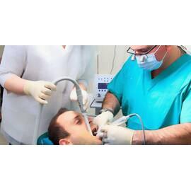 Лазерна імплантація зубів в Києві