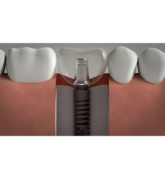 Имплантация зубов в Киеве по доступной цене