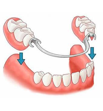 Зубне протезуванняза доступною ціною