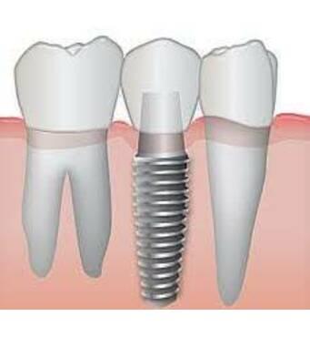Установка зубного імплантаза доступною ціною