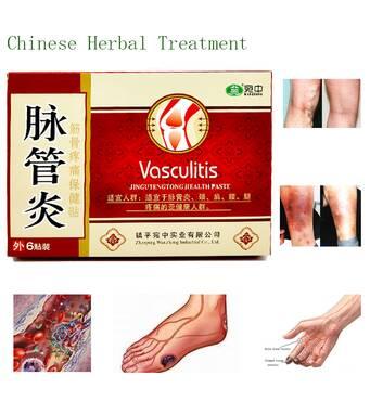 Китайський пластир для вен упаковка 21 шт