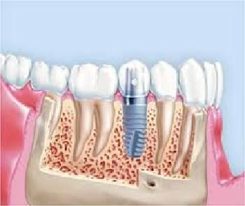 Одноетапна експрес-імплантація зубів в Києві