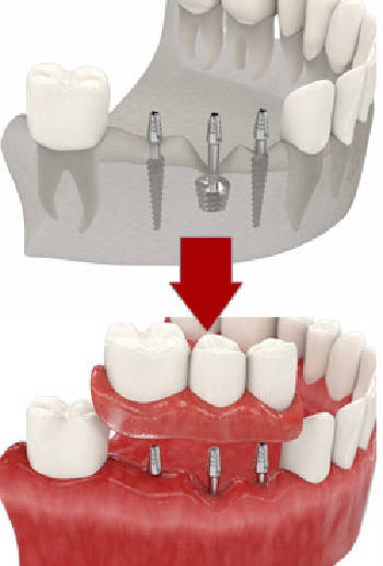 Базальна імплантація зубів Київ