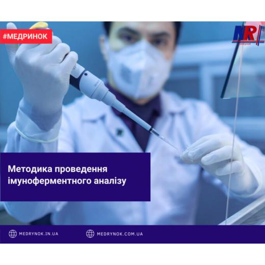 Методика проведення імуноферментного аналізу