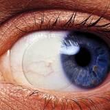 Силикон-гидрогелевые линзы ― то, что нужно для чувствительных глаз!