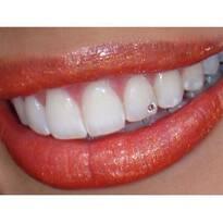 Декоративные зубные украшения