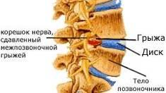 Методы лечения межпозвоночной грыжи диска