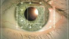Поставка аппаратов для офтальмологии