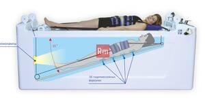 Підводне витягування хребта - найефективніший метод лікування сколіозу!