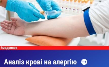 Аналіз крові на алергію